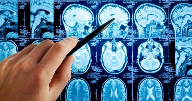 Отек мозга – экстренные меры и правильное лечение